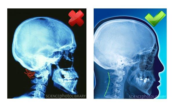 Röntgen képek: feszes és szabad nyak izmok (2 kép)
