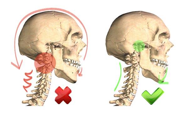 Állkapocs mozgása: nyak izmokat feszítve és szabadon hagyva (2 kép)
