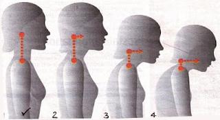 Előrehelyezett testartás (4 állapot)